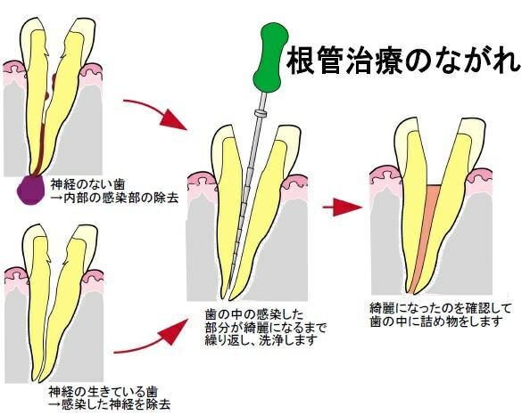 根の治療の対処法 | スタッフブ...